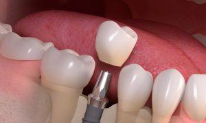 Planuokitės vizitą pas odontologą