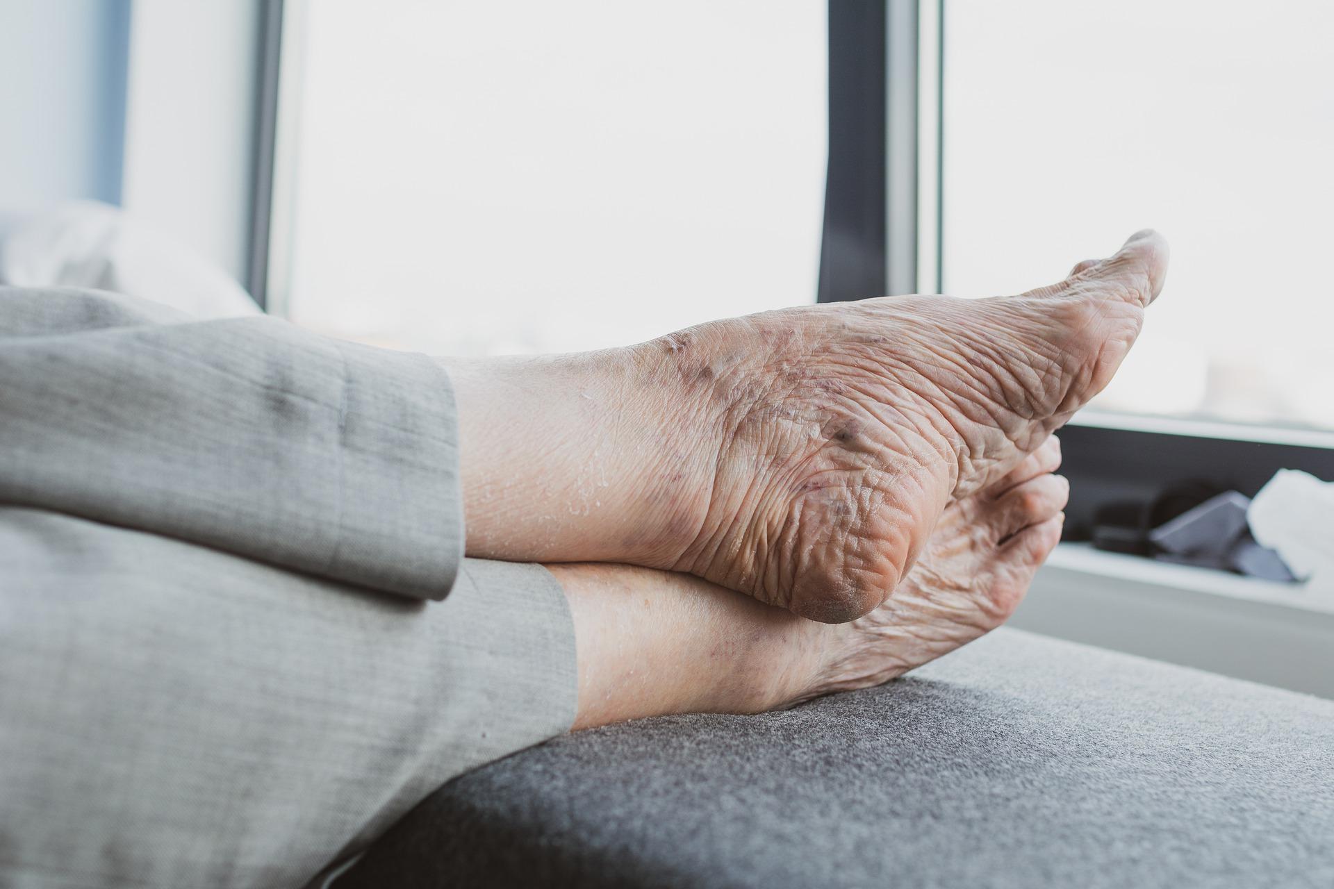 pėdų ligos