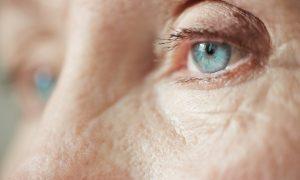 Veido odos priešas – raukšlės?