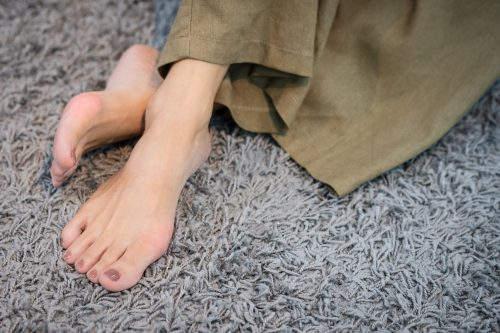 kojų tinimas